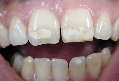 Реминерализация зубов