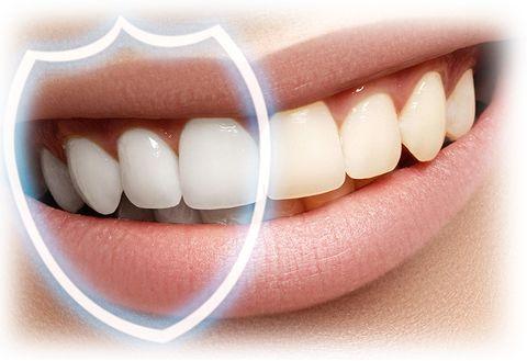 Восстановление эмали | Стоматология Митино