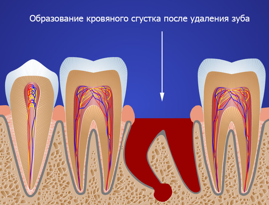 удаление восьмого зуба элеватором