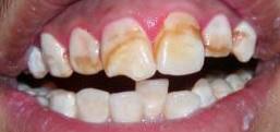 отбеливание зубов митино