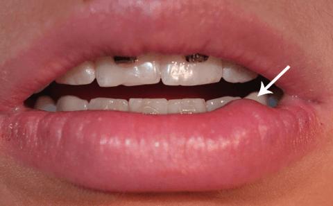 Ретенционная киста нижней губы