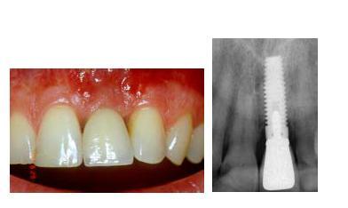 виниры на задние зубы