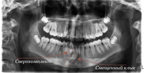 сверхкомплектные зубы